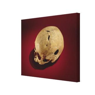 Trepanned Skull Canvas Print