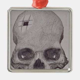 Trepanned Skull Christmas Ornament
