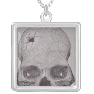 Trepanned Skull Silver Plated Necklace