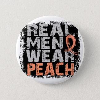 Uterine Cancer Real Men Wear Peach 6 Cm Round Badge