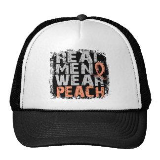 Uterine Cancer Real Men Wear Peach Trucker Hats