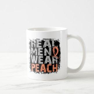 Uterine Cancer Real Men Wear Peach Coffee Mugs