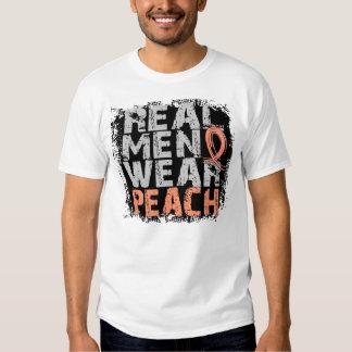 Uterine Cancer Real Men Wear Peach Tee Shirt