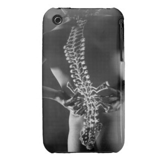 View of spinal chord iPhone 3 case