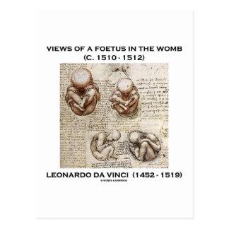 Views Of A Foetus In The Womb (Leonardo da Vinci) Postcard