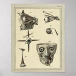Vintage 1831 Eye Muscles Anatomy Print