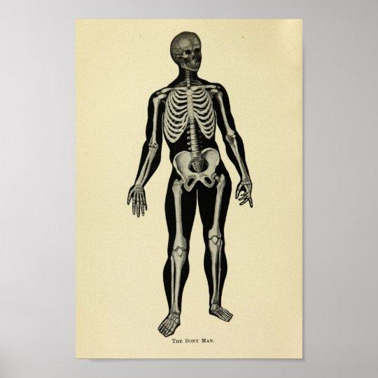 Vintage 1920 Skeleton Anatomy Art Print