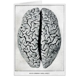 Vintage Brain Card