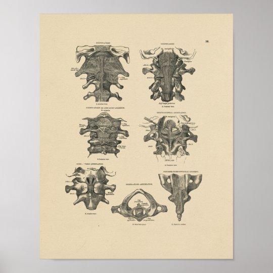 Vintage Cervical Spine Anatomy 1880 Print