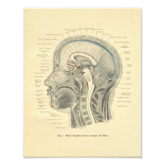 Vintage Frohse Anatomical Print Head Neck
