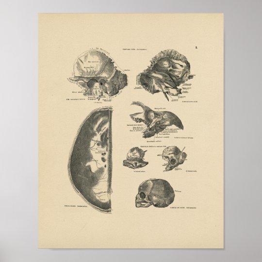 Vintage Human Skull Bones 1880 Print