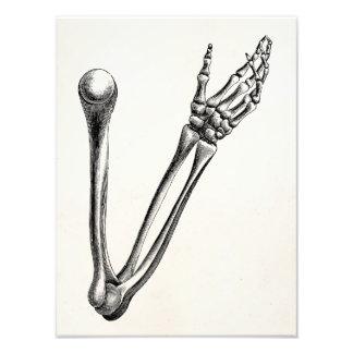Vintage Skeleton Arm Bone Personalized Retro Bones Art Photo
