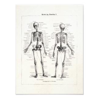Vintage Skeleton Human Anatomy Bone Bones Skull Photo Art