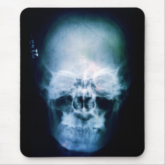 X-Head Mouse Pad