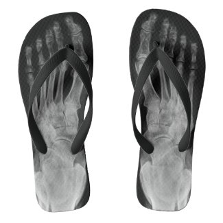 X ray anatomy skeleton feet cool flip plops flip flops