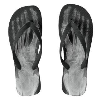 X ray anatomy skeleton feet cool flip plops flip flops