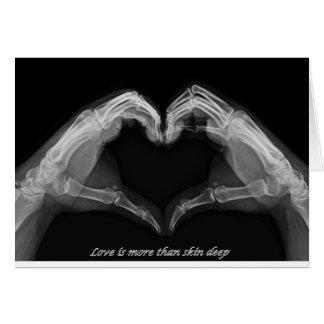 X-Ray Art Cards