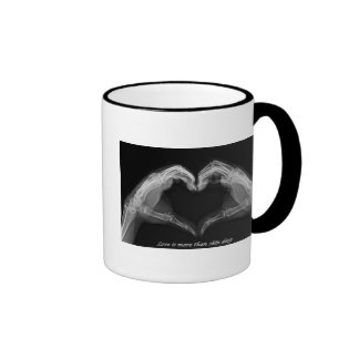 X-Ray Art Coffee Mugs