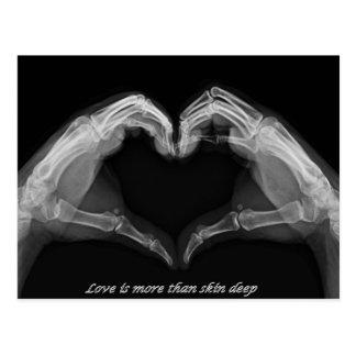 X-Ray Art Postcard