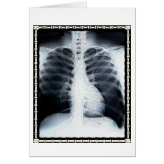 X-Ray Chest Card