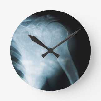 X-ray Round Clock