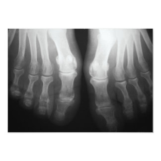 X-Ray Feet Human Skeleton Bones Black & White 13 Cm X 18 Cm Invitation Card