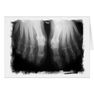 X-Ray Feet Human Skeleton Bones Black & White Greeting Card
