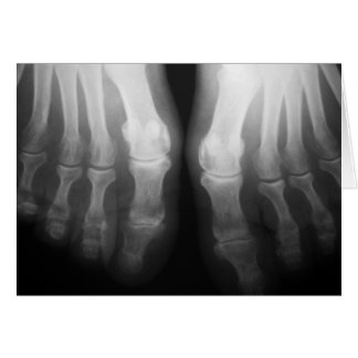 X-Ray Feet Human Skeleton Bones Black & White Note Card