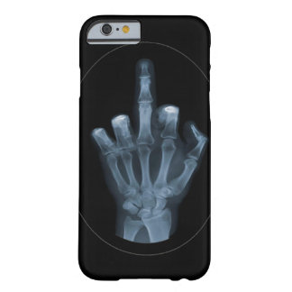 X-Ray Finger Barely There iPhone 6 Case