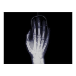 X-ray Hand Poster