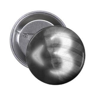 X-Ray Heart - Button