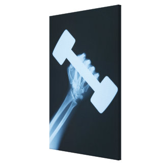 X-ray image of human hand with weight, close-up canvas print