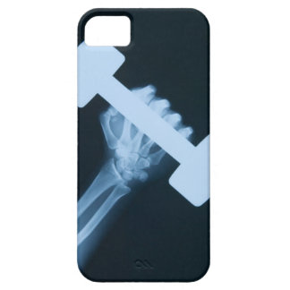 X-ray image of human hand with weight, close-up case for the iPhone 5