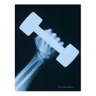 X-ray image of human hand with weight, close-up postcard