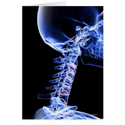X-ray image of the bones of the neck greeting cards