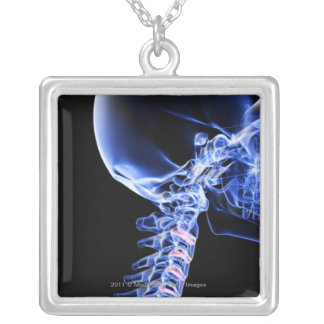 X-ray image of the bones of the neck silver plated necklace