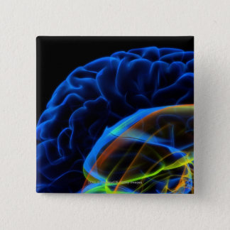 X-ray image of the brain 15 cm square badge