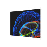 X-ray image of the brain canvas print