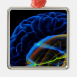X-ray image of the brain christmas ornament