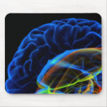 X-ray image of the brain mouse mat