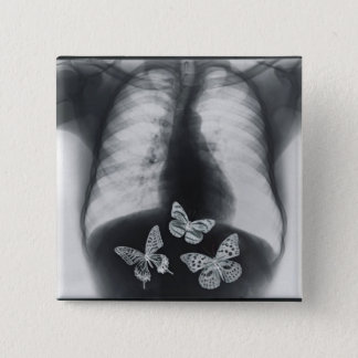 X-ray of butterflies in the stomach 15 cm square badge