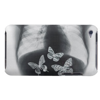 X-ray of butterflies in the stomach Case-Mate iPod touch case