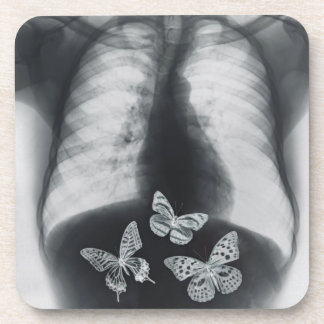 X-ray of butterflies in the stomach coaster