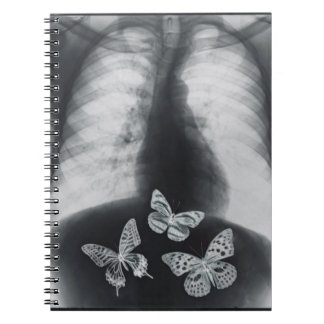 X-ray of butterflies in the stomach notebooks