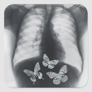 X-ray of butterflies in the stomach square sticker