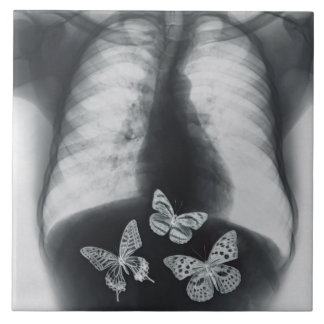 X-ray of butterflies in the stomach tile