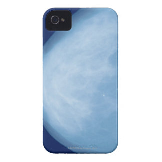 X-ray of female breast, side view Case-Mate iPhone 4 case