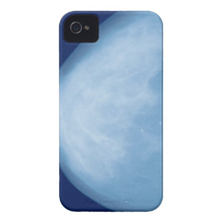 X-ray of female breast, side view iPhone 4 case