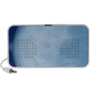 X-ray of female breast, side view laptop speaker