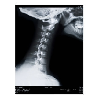 X ray of neck vertebrae including lower jaw post card